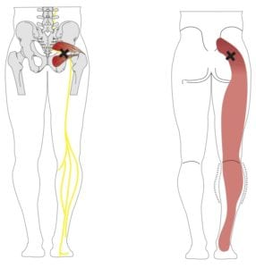 3_Piriformis_Syndrome_EPS