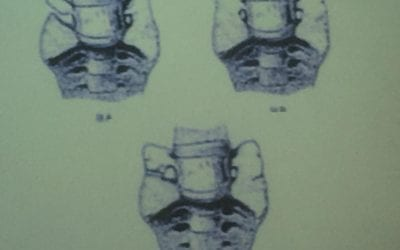 Transitional Lumbosacral Joints