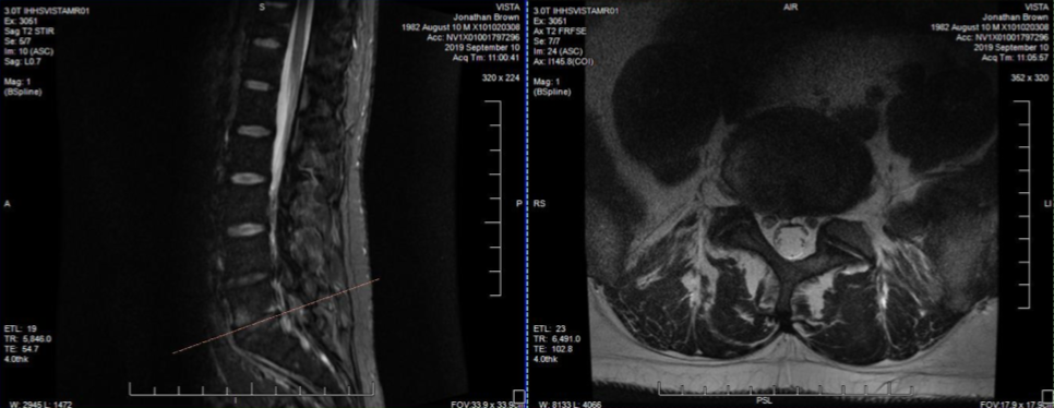 MRI Points the Way